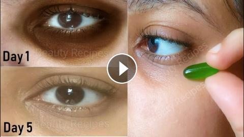 In 5 Days Remove Dark Circles, under Eye Wrinkles & Eye ...