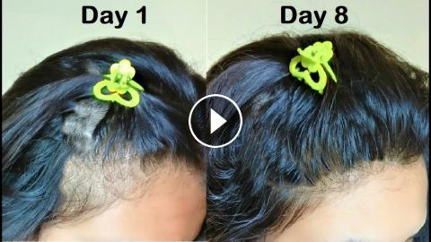 She Used Onion Hair Oil For 1 Week Turned Thin Hair To