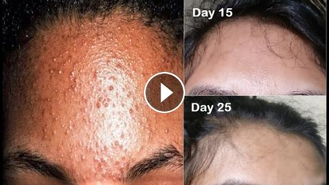 How I Cleared Tiny Bumps On Forehead Small Pimples Small Bumps On Face Acne Prone Skincare Routine