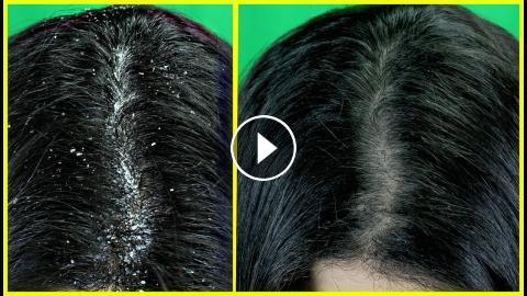 how to remove dandruff permanently at home