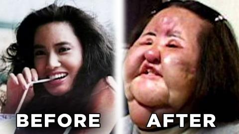 10 Plastic Surgery Horror Stories