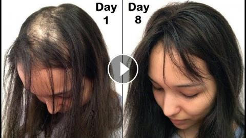 She Turned Her Thin Hair To Thick Hair In 1 Week Apple