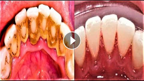 Remove Dental Plaque In 5 Minutes Naturally Without Going To The