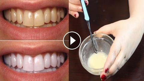 How To Whiten Teeth Best Teeth Whitening Method Teeth