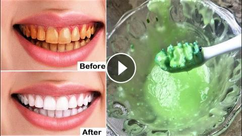 How To Whiten Yellow Teeth Naturally In 2 Minutes Teeth Whitening