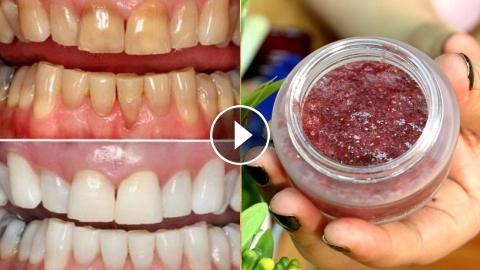 How To Whiten Your Dirty Yellowish Teeth Naturally Teeth