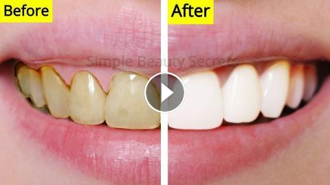 How To Whiten Your Teeth Naturally At Home Remove Plaque